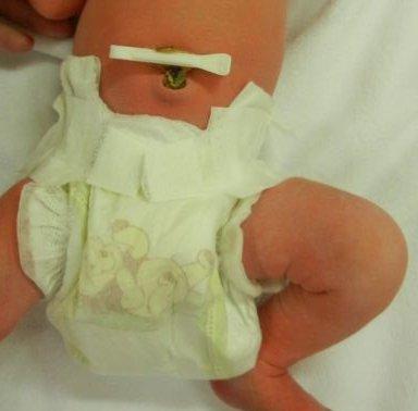 Уход за пупком новорожденного