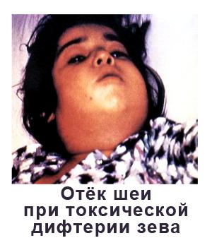 Дифтерия Столбняк Коклюш