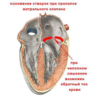 пролапс митрального клапана