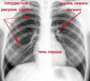 обзорная рентгенорафия органов грудной клетки