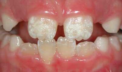 Зубы у ребенка темнеют
