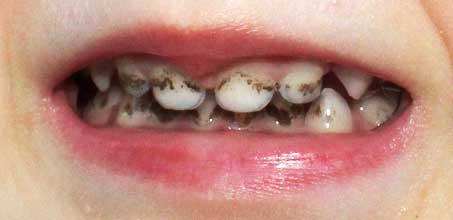 налет Пристли Черные зубы у ребенка