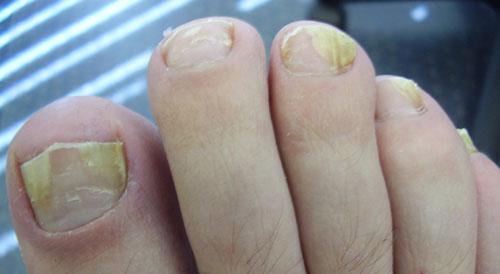грибок ногтей У ребенка слоятся ногти