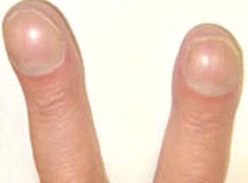 ногти в форме часового стекла У ребенка слоятся ногти