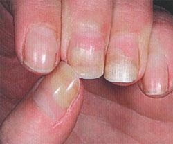 отслойка части ногтя