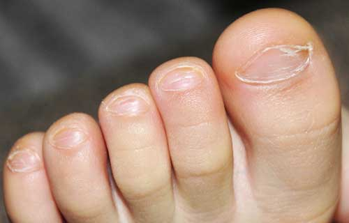 У ребенка слоятся ногти
