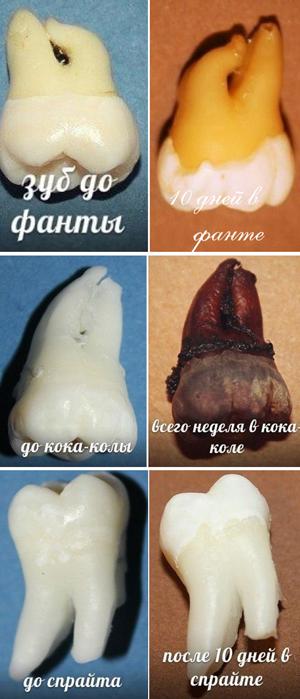 зуб через неделю после спрайта, колы, фанты