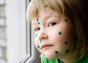 Можно ли гулять ребёнку с температурой ветрянкой кашлем насморком отитом конъюнктивитом