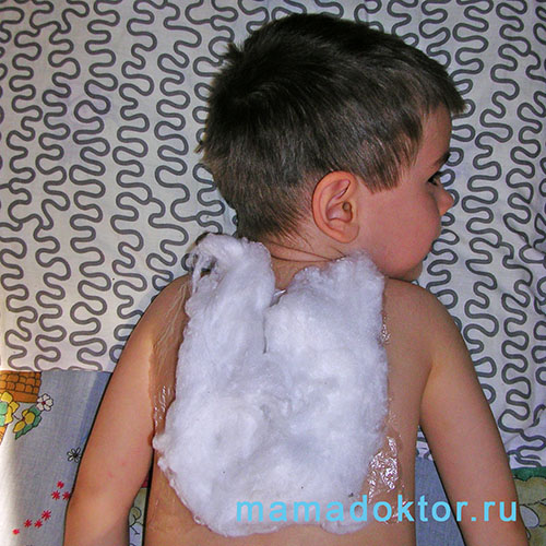 компресс детям компресс от кашля
