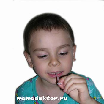 Ребенок проглотил монету батарейку