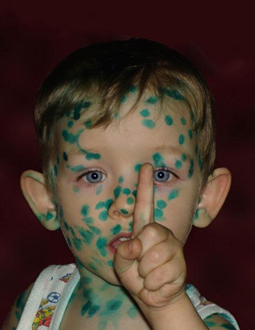 Зеленка ребенку