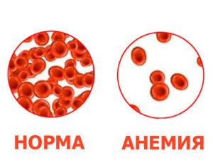 Анемия у детей лечение