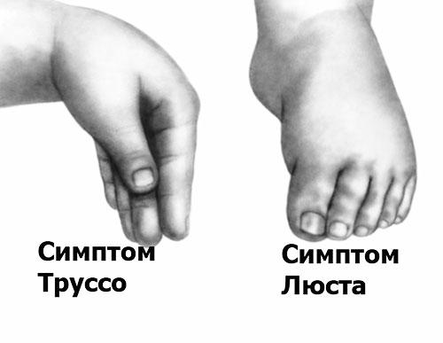 Судороги у детей