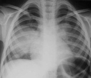 Пневмония у ребенка Рентген