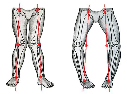 искривление ног