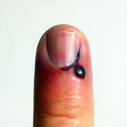 прищемили палец