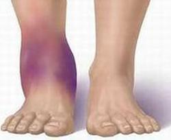 боли в ногах при травме