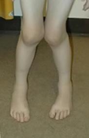 ювенильный ревматоидный артирит