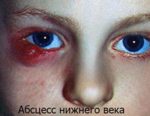 u_rebenka_opuh_glaz1